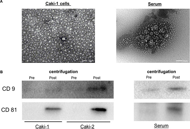 Exosomes from human serum and cell culture medium.