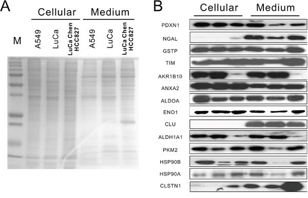 Protein expression of identified secreted proteins in cellular and conditioned medium.
