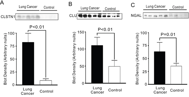CLSTN1, CLU and NGAL expressions in serum from lung cancer patients and health controls.