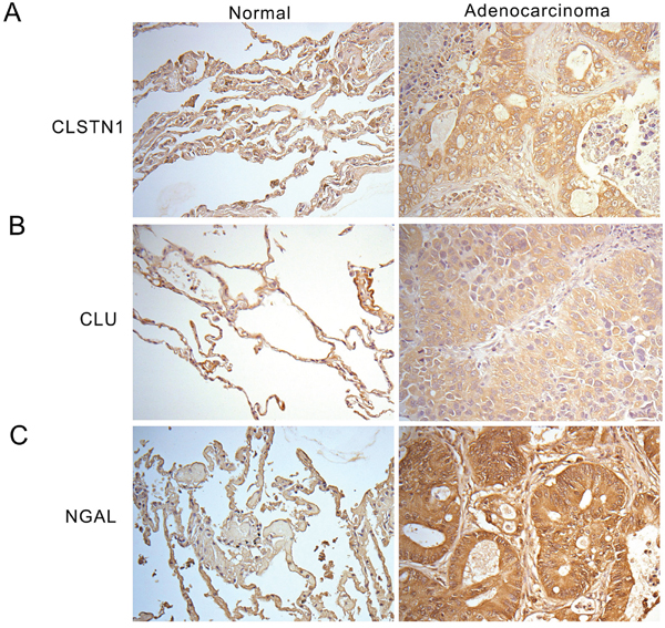 Immunohistochemistry staining of CLSTN1, CLU and NGAL in human tissue sections.