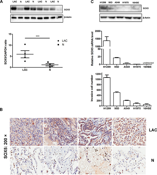 SOX5 is over-expressed in lung adenocarcinoma and is associated with in vitro cell invasion.