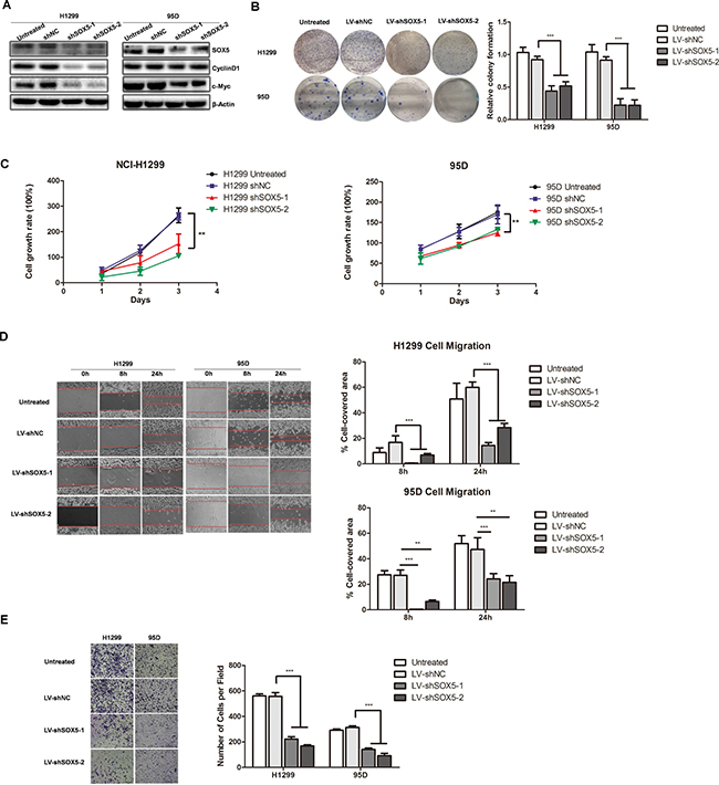 SOX5 knockdown inhibits LAC cell proliferation and metastasis in vitro.