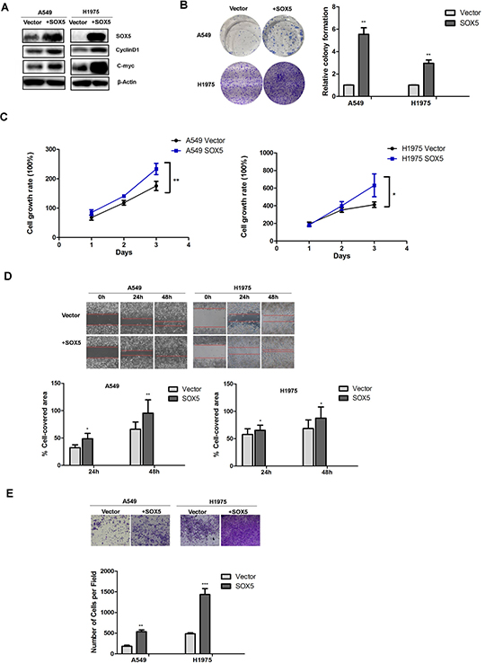 Effects of SOX5 overexpression on LAC cell proliferation and metastasis.