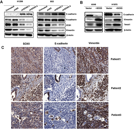 SOX5 facilitates the epithelial-mesenchymal transition (EMT) in lung adenocarcinoma.