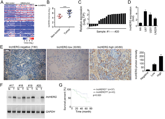LncHERG is highly expressed in glioblastoma.