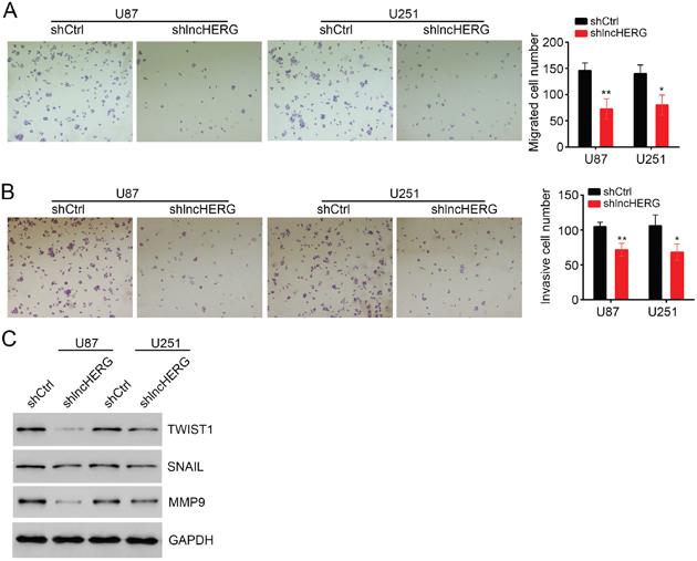 LncHERG enhances cell migration and invasion.
