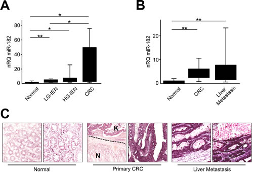 miR-182 is up-regulated during colon carcinogenesis.