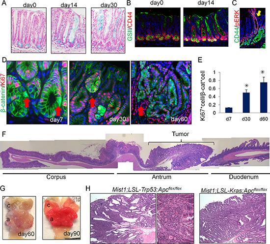 Antral Mist1+ cells serve as a cellular origin of cancer.