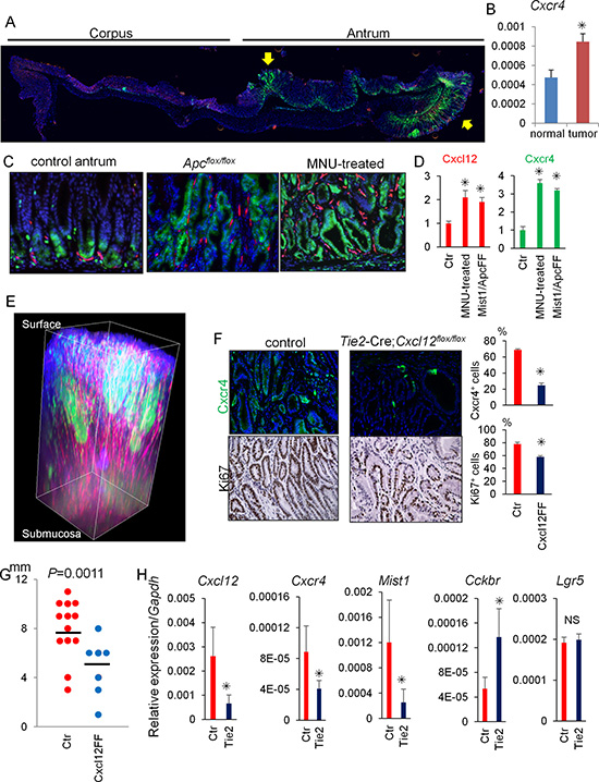 Cxcl12/Cxcr4 axis contributes to antral tumor growth.