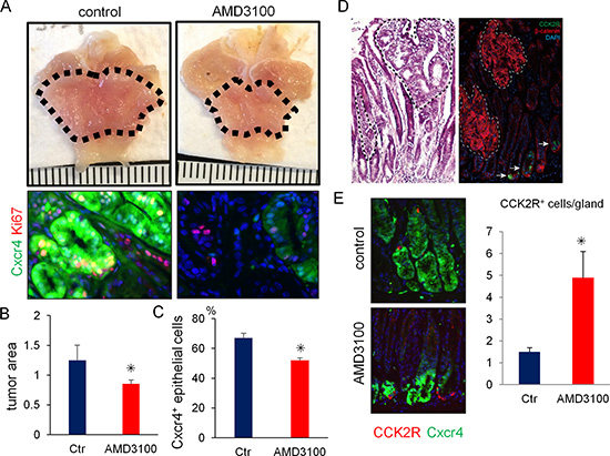 Pharmacological blockade of Cxcr4 inhibits antral tumor growth.