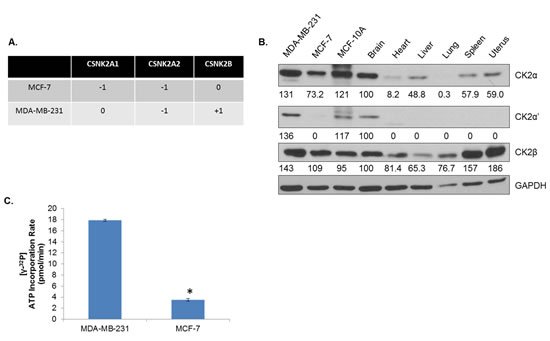 CK2 Expression Is Elevated in Human Breast Cancer Cells Compared to Normal Tissue.