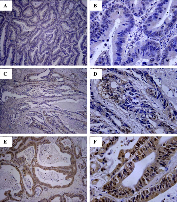 Immunohistochemistry analysis of HLA-G expression in primary CRC lesions.