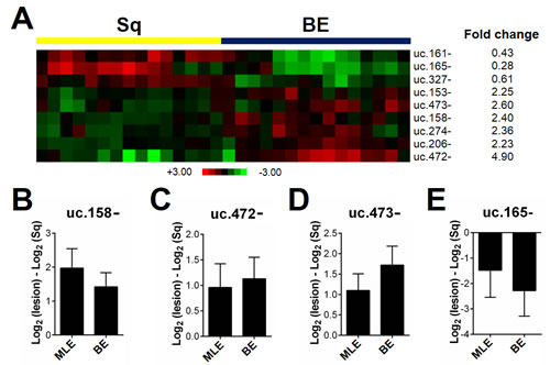 T-UCR expression is altered in esophageal metaplastic lesions.