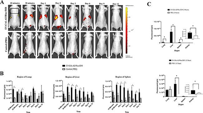 In vivo noninvasive fluorescent visualization of EV-CAL-62/Rluc/DiR biodistribution in nude mice and organ distribution.