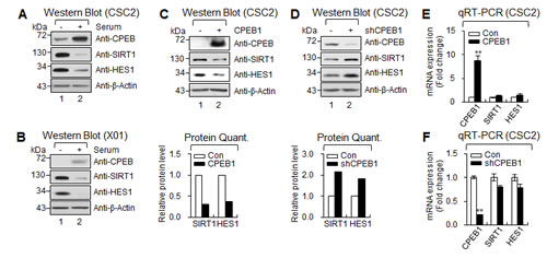 CPEB1 regulates translation of HES1 and SIRT1 mRNAs.