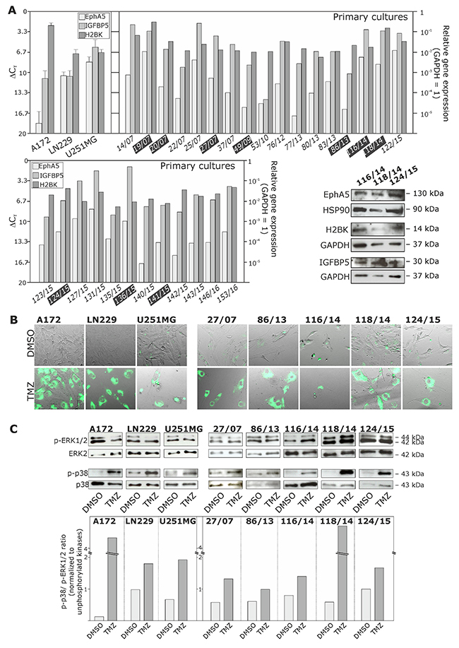 Expression of EphA5, IGFBP5 and H2BK in cultured human non-stem GBM cell lines and primary cultures, and analysis of a Temozolomide (TMZ)-induced cellular dormant state in different GBM cultures.