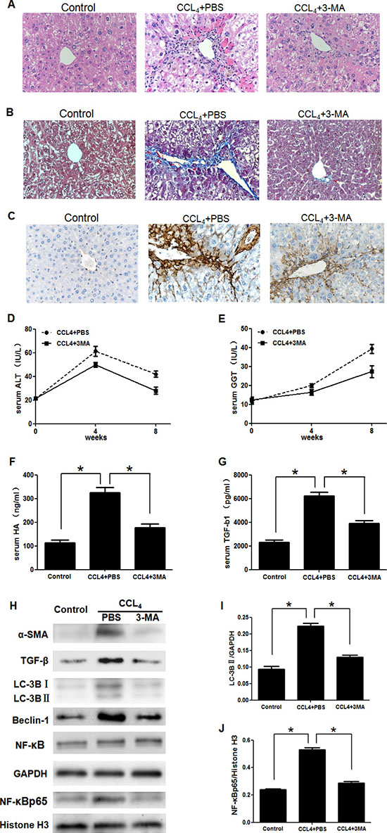 3-Methyladenine (3-MA) promoted the recovery of carbon tetrachloride (CCl4)-induced liver fibrosis by inhibiting the autophagy and translocation of NF-κB into the nucleus in HSCs.