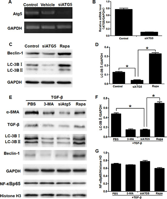 Blocking autophagy inhibited activation of LX2 cells, but having no effect on translocation of NF-κB into nucleus.