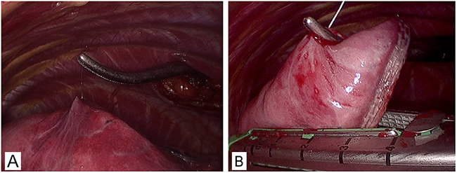 Resection of pGGO under VATS.