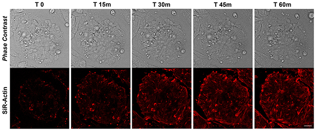 Time-lapse of SiR-Actin probe in proliferating iPSCs.