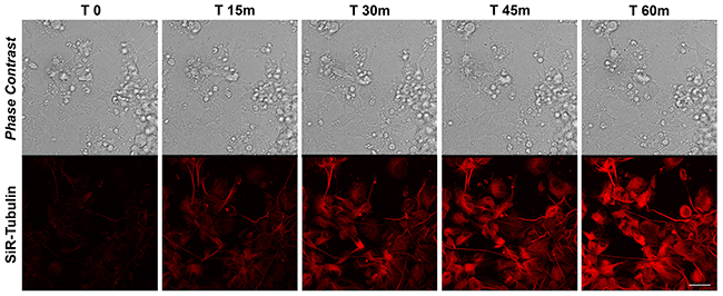 SiR-Tubulin in differentiated iPSCs.