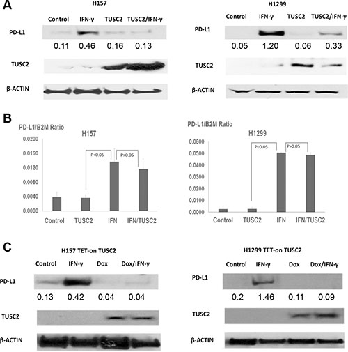 TUSC2 prevents IFN-γ–induced PD-L1 expression.