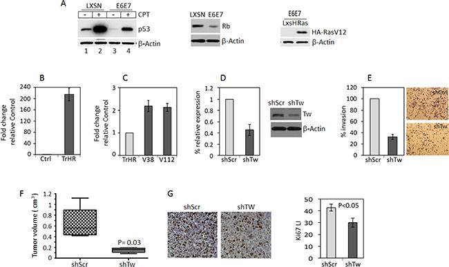 TW knockdown in HPV E6/7 transformed neural progenitor cells (NPCs) inhibits tumorigenicity.