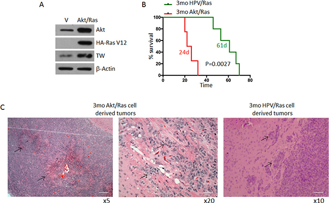 Comparative survival of 3mo mouse NPCs transformed by HPV/Ras versus Akt/Ras.