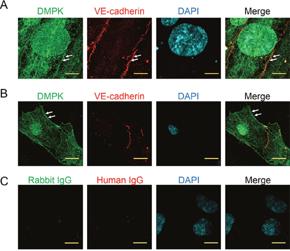 Localization of DMPK in confluent and migrating endothelial cells.