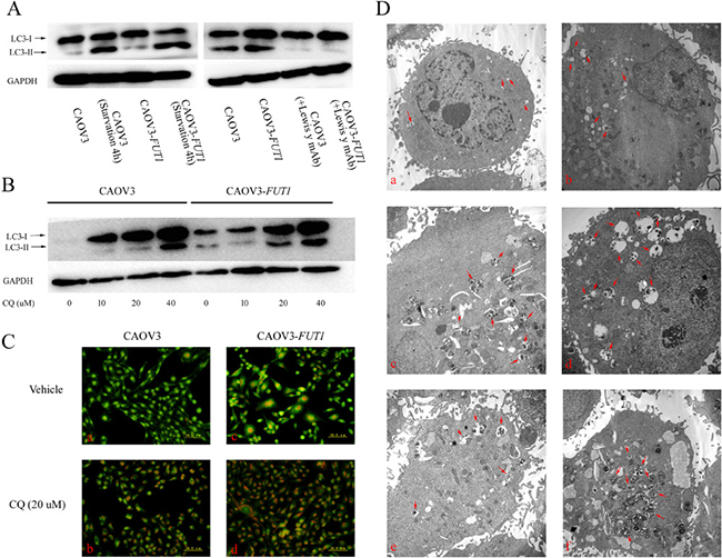 Lewis y antigen overexpression promoted autophagy in the ovarian cancer cell line CAOV3.