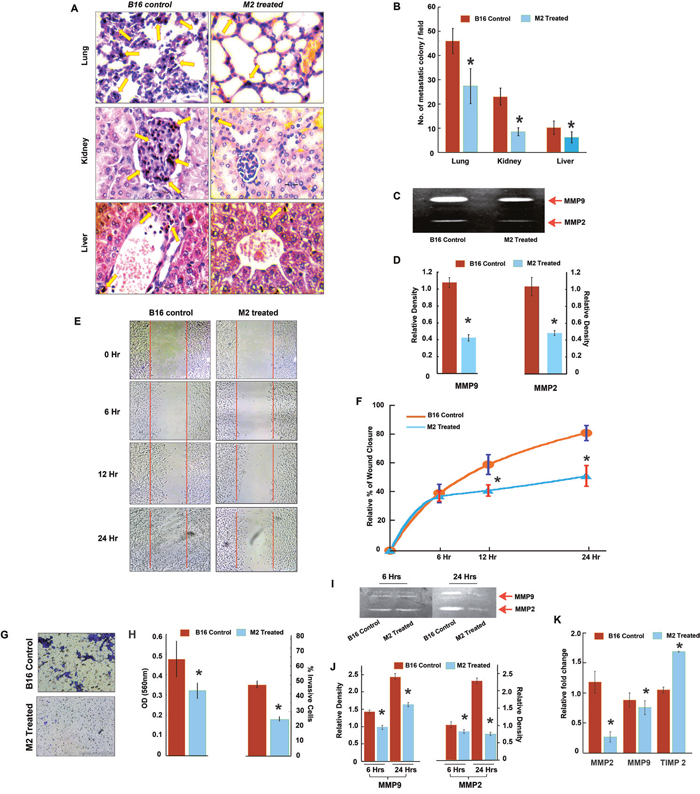 Anti-metastatic potential of M2 in murine melanoma, B-16F10 cells in vitro and in vivo.