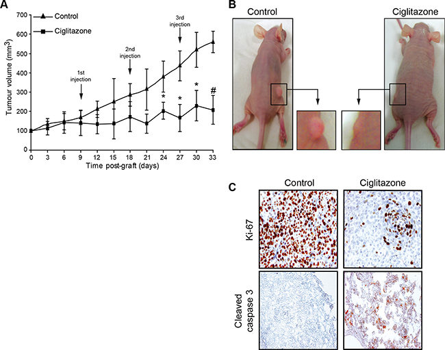 Antitumour activity of ciglitazone administered as monotherapy in athymic mice bearing Ca Ski cervical cancer xenografts.