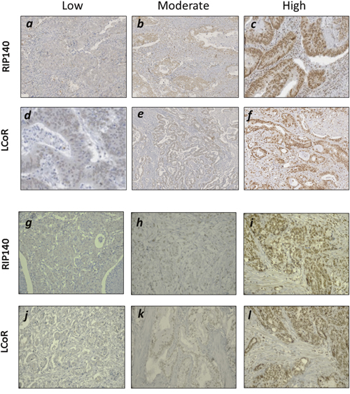Immunohistochemical staining of RIP140 and LCoR in GICs.