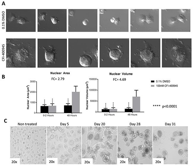 Rhabdoid cells treated with the PLK4 inhibitor CFI-400945 displayed significant increase in cell size (hypertrophy).