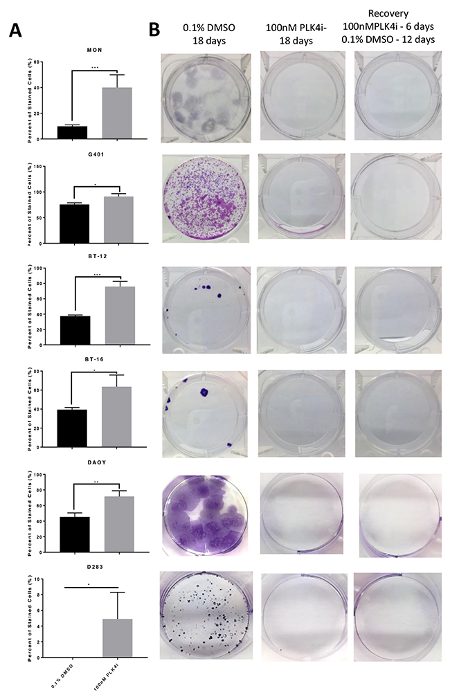 RT and MB cells exposed to the PLK4 inhibitor CFI-400945 underwent an irreversible state of cell cycle arrest - senescence.