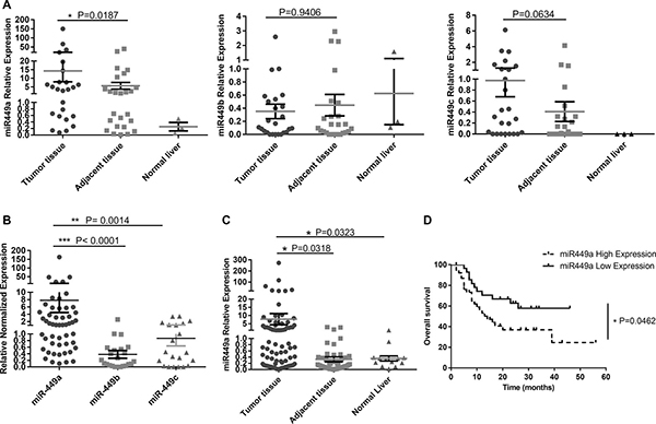 miR-449 is upregulated in HCC patients and correlated with poor prognosis.