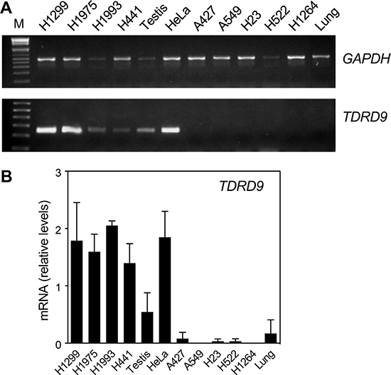 TDRD9 is expressed in a subset of lung carcinoma cell lines.