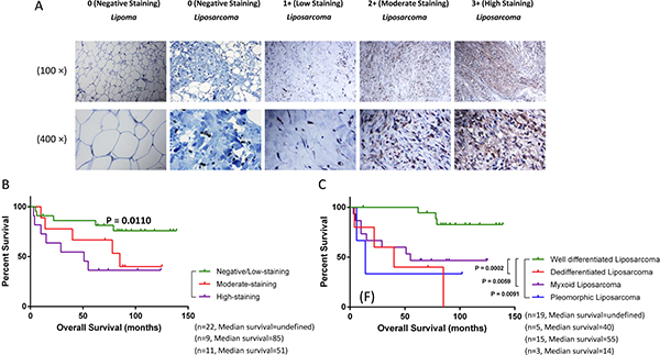 DYRK1B is overexpressed in liposarcoma and correlates with poor patient prognosis.