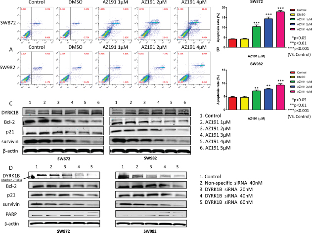Inhibition of DYRK1B by kinase inhibitor AZ191 or siRNA transfection induces cell apoptosis in liposarcoma cell lines.
