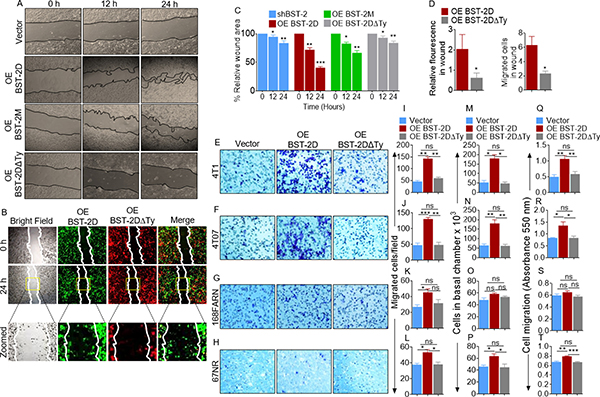 Identification of the domain of BST-2 that controls cell migration.