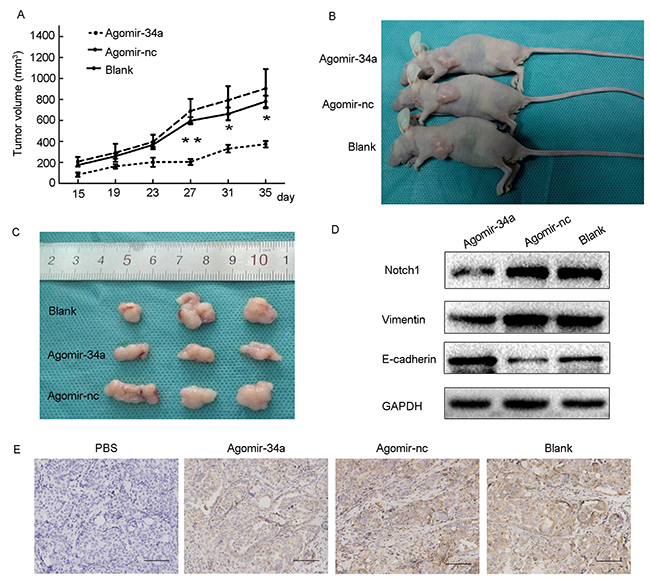 Overexpression of miR-34a inhibited tumor growth and EMT in BALB/c nude mice.