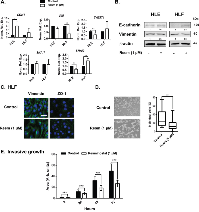 Resminostat affects the expression of EMT related genes.