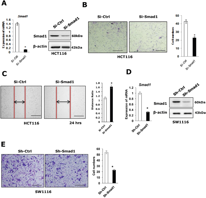Knocking-down of Smad1 decreases CRC cell migration.