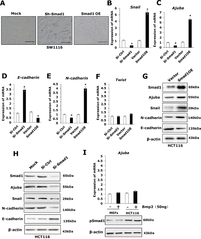 Smad1 promotes migration of HCT116 by enhancing EMT.