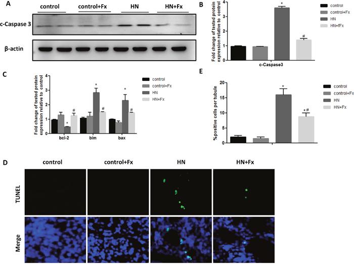 Febuxostat reduced apoptosis of renal tubular cells in hyperuricemic rats.