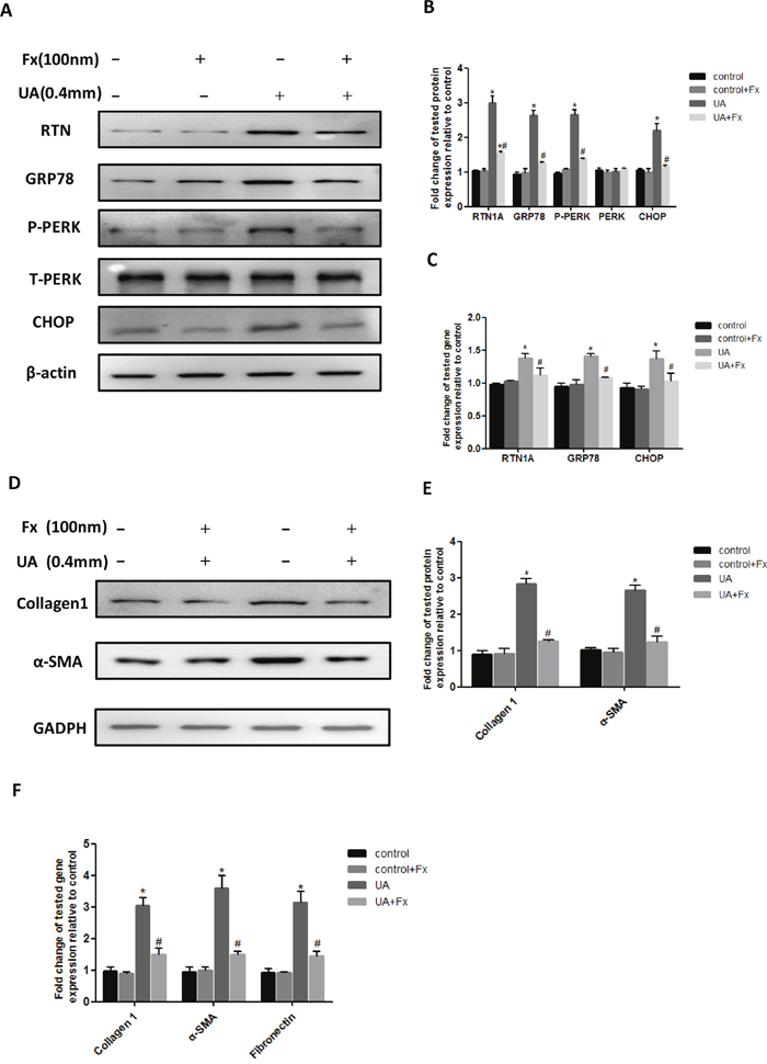 Febuxostat inhibited uric acid-induced expression of ER stress and pro-fibrosis markers in NRK-52E cells.