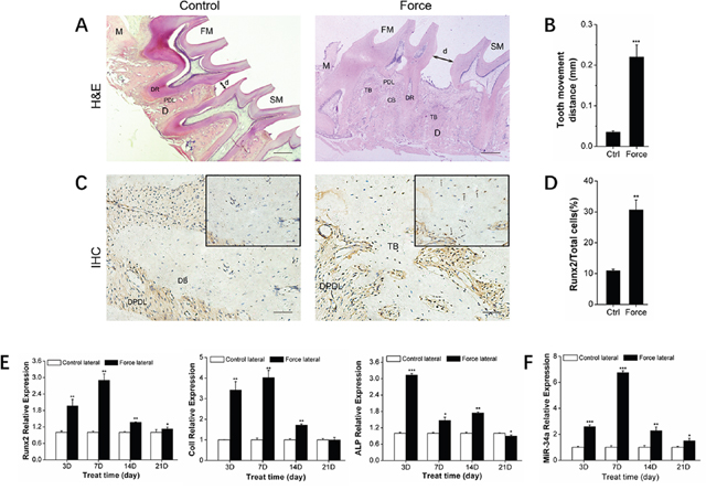 Osteogenesis and miR-34a expression of alveolar bone under orthodontic force loading.
