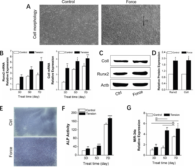 In vitro promotion of osteogenic differentiation by orthodontic strain and miR-34a expression in rBMSCs.