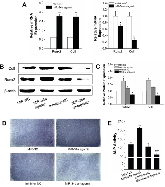 Osteogenic differentiation under orthodontic strain was improved by the MiR-34a agomir in vitro.