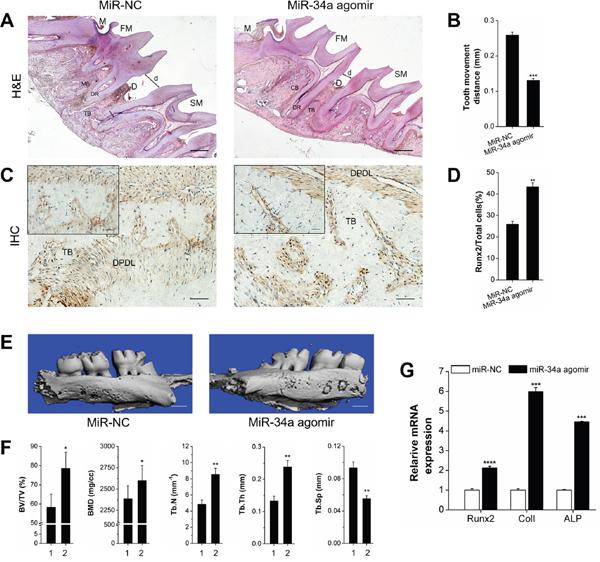 Osteogenesis analysis of OTM with local miR-NC or miR-34a agomir application in vivo.
